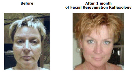 Facial Exercise Results